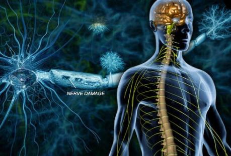 1413277083-sclerosis-multiplex